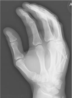 broken hand cropped